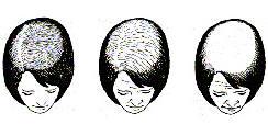 femalepattern